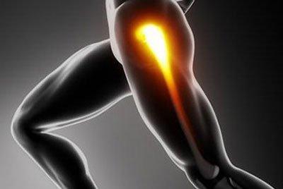 Кисты вертлужной впадины, головки бедренной кости как следствие коксартроза