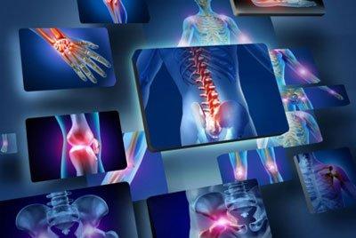Опухолевые поражения эпифизов костей
