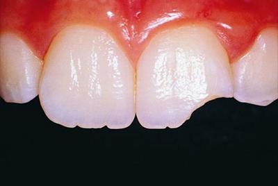 Почему крошатся зубы, лечение и профилактика
