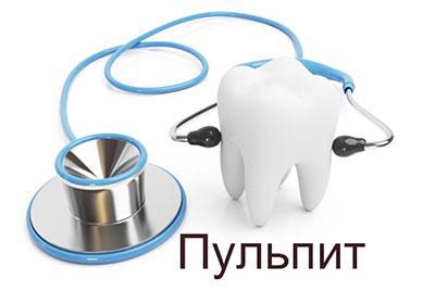 Очаговый пульпит и лечение воспаления пульпы в современной стоматологии
