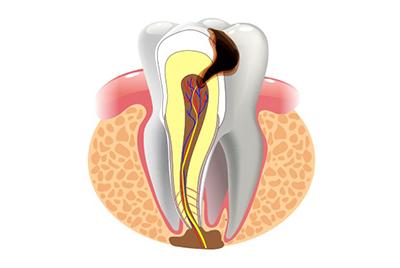 Хронический периодонтит и лечение в современной стоматологической клинике