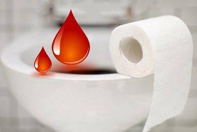 Наличие крови в кале. Проктологическая помощь в Ростове-на-Дону